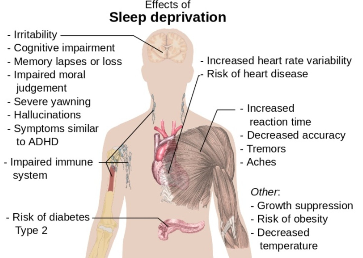 Just some of the many things sleep deprivation can cause...