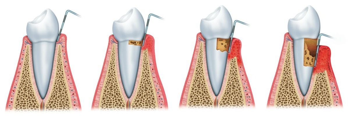 How to Protect Against Gum Disease Problems