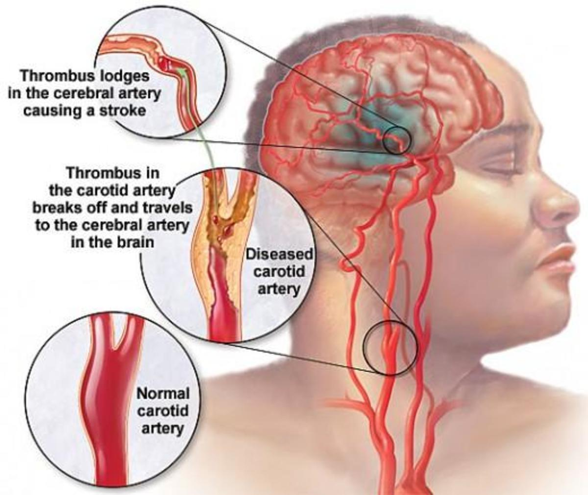 Chelation Therapy Cures Stroke (Blood Clot) - More Effectively than Conventional Methods