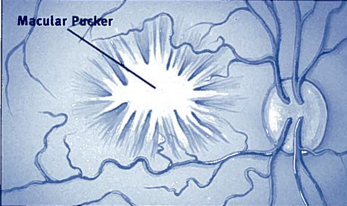 A diagram of what the scar tissue looks like on the retina.  Also known as the epiretinal membrane.
