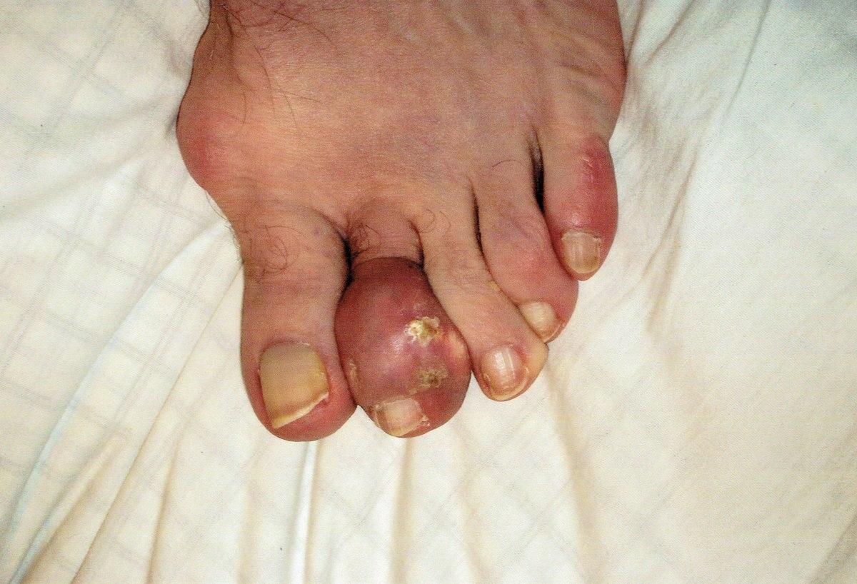 Left foot before using PURIXA