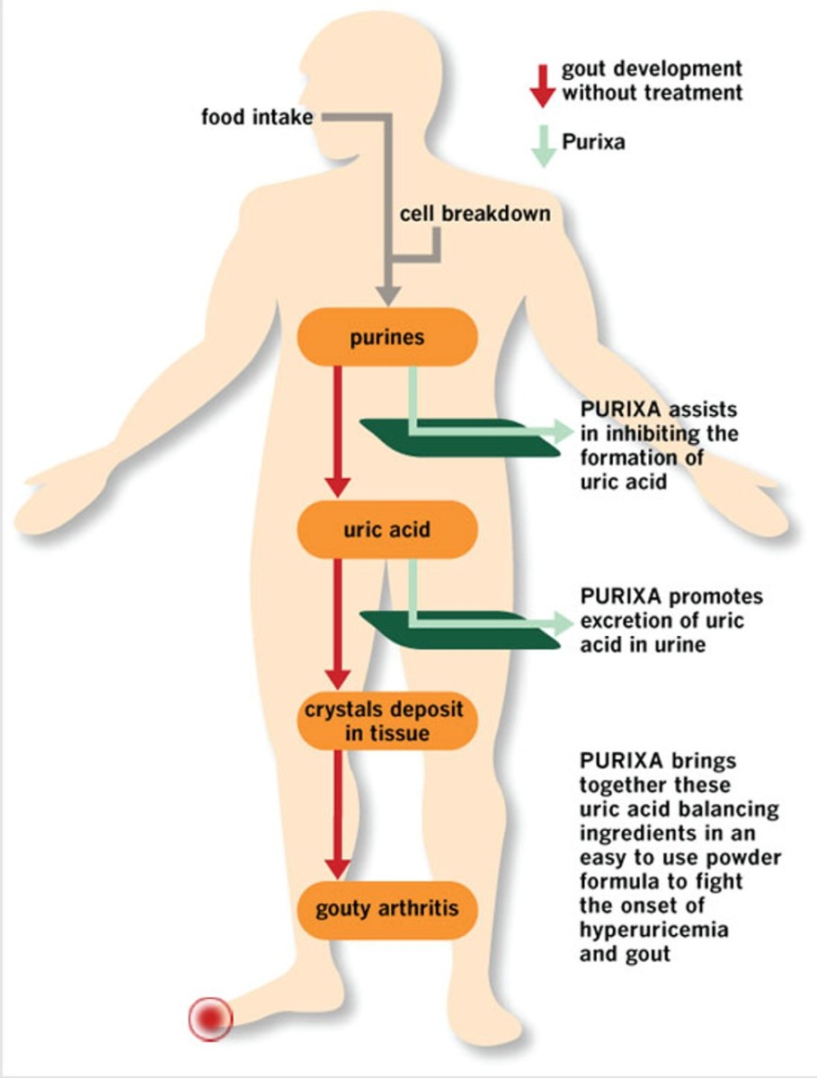 Diet plays an important role in the production of purine and uric acid production.  Blocking uric acid production or promoting its excretion is the main objective of gout medications and natural supplements like Purixa.