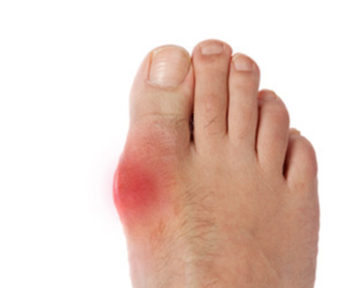 Gout attacks can be painful and often debilitating for 3 to 7 days.