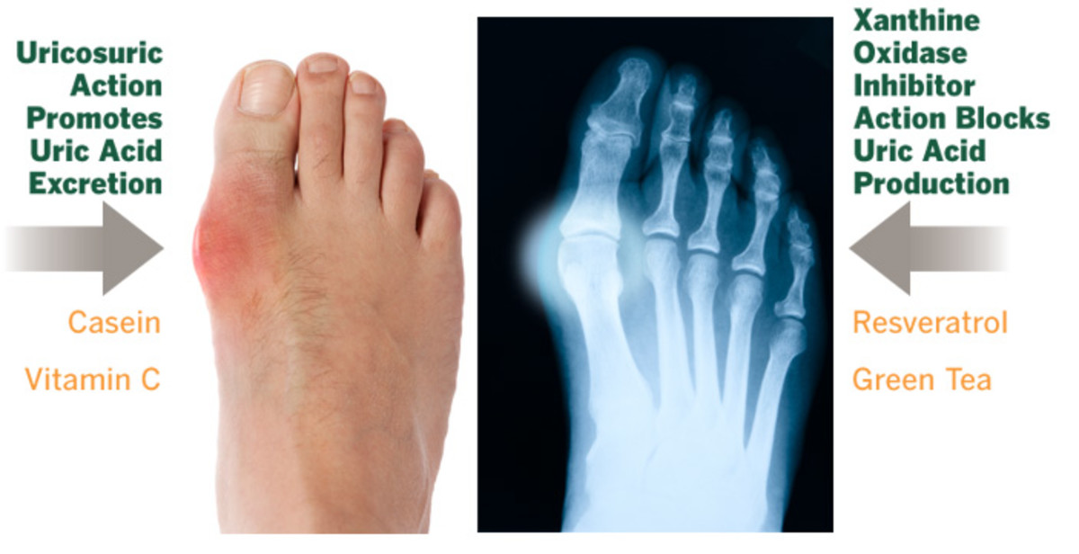 foods high in purines chart gout in ankle no swelling cure gout now by lisa mcdowell