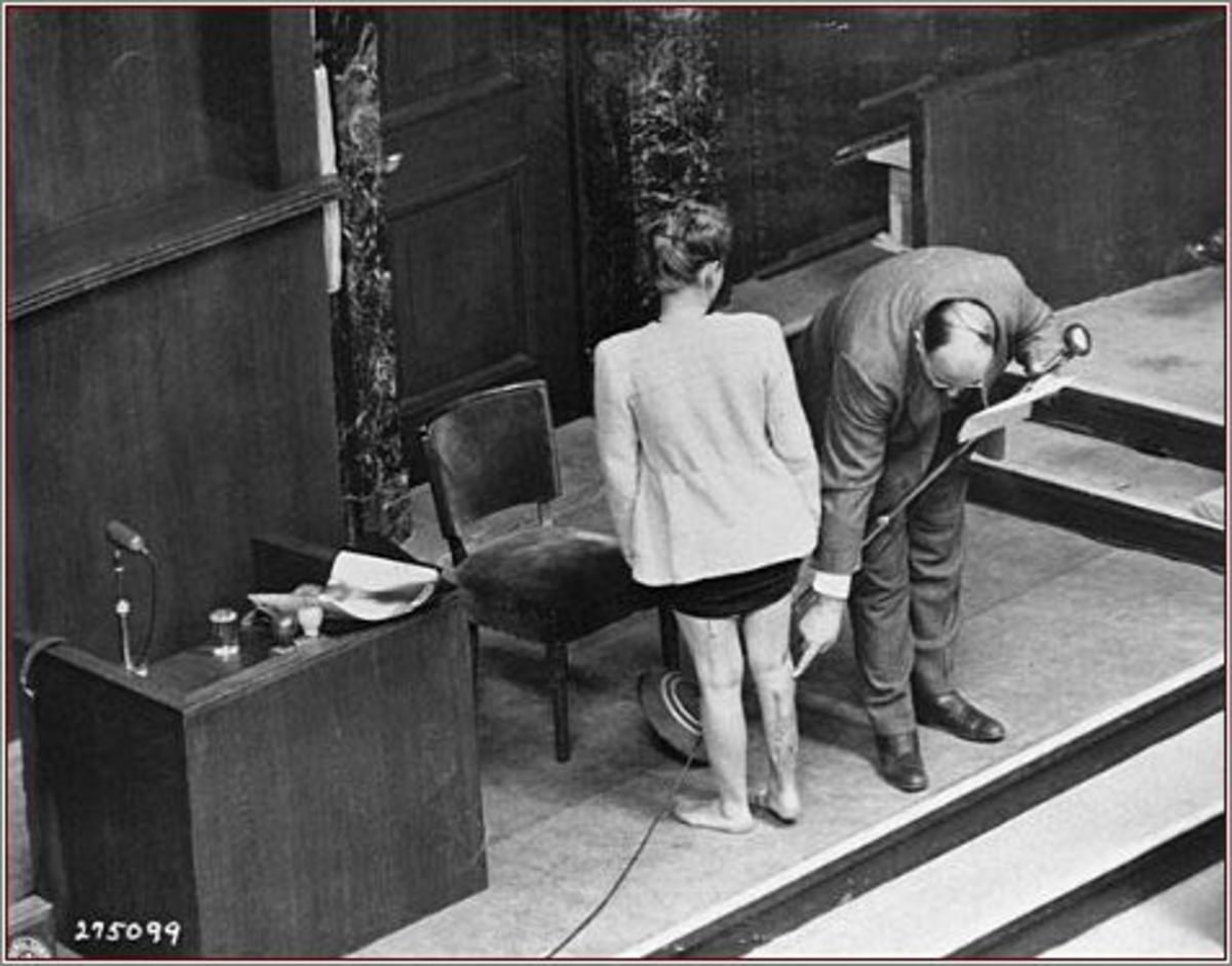 "At the Nuremberg ""Doctors' Trial,"" a doctor presents the scars on the leg of a Polish survivor who endured sulfanilamide experiments at the Ravensbrück concentration camp."