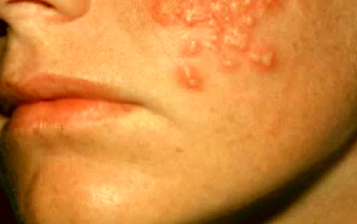 Hiv rash images symptoms location and treatment