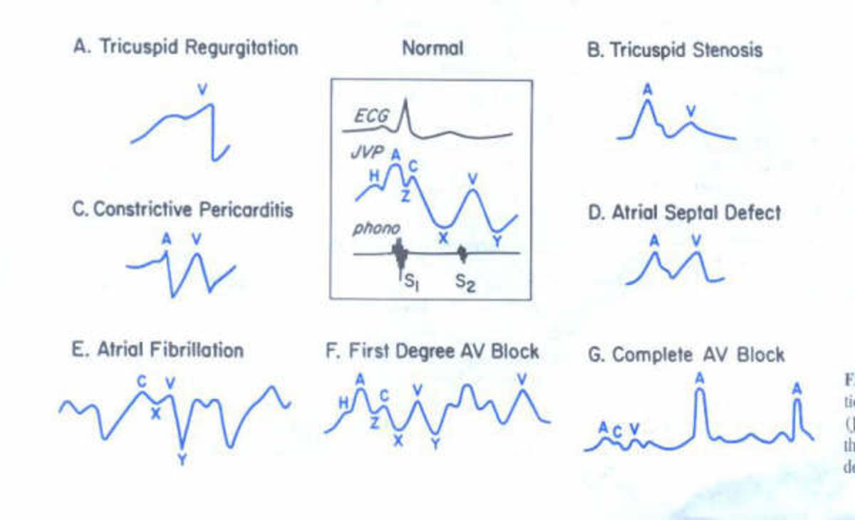 The evaluation of the venous pulse is an integral part of the physical examination since it it reflects both the mean right atrial pressure and the hemodynamic events in the right atrium