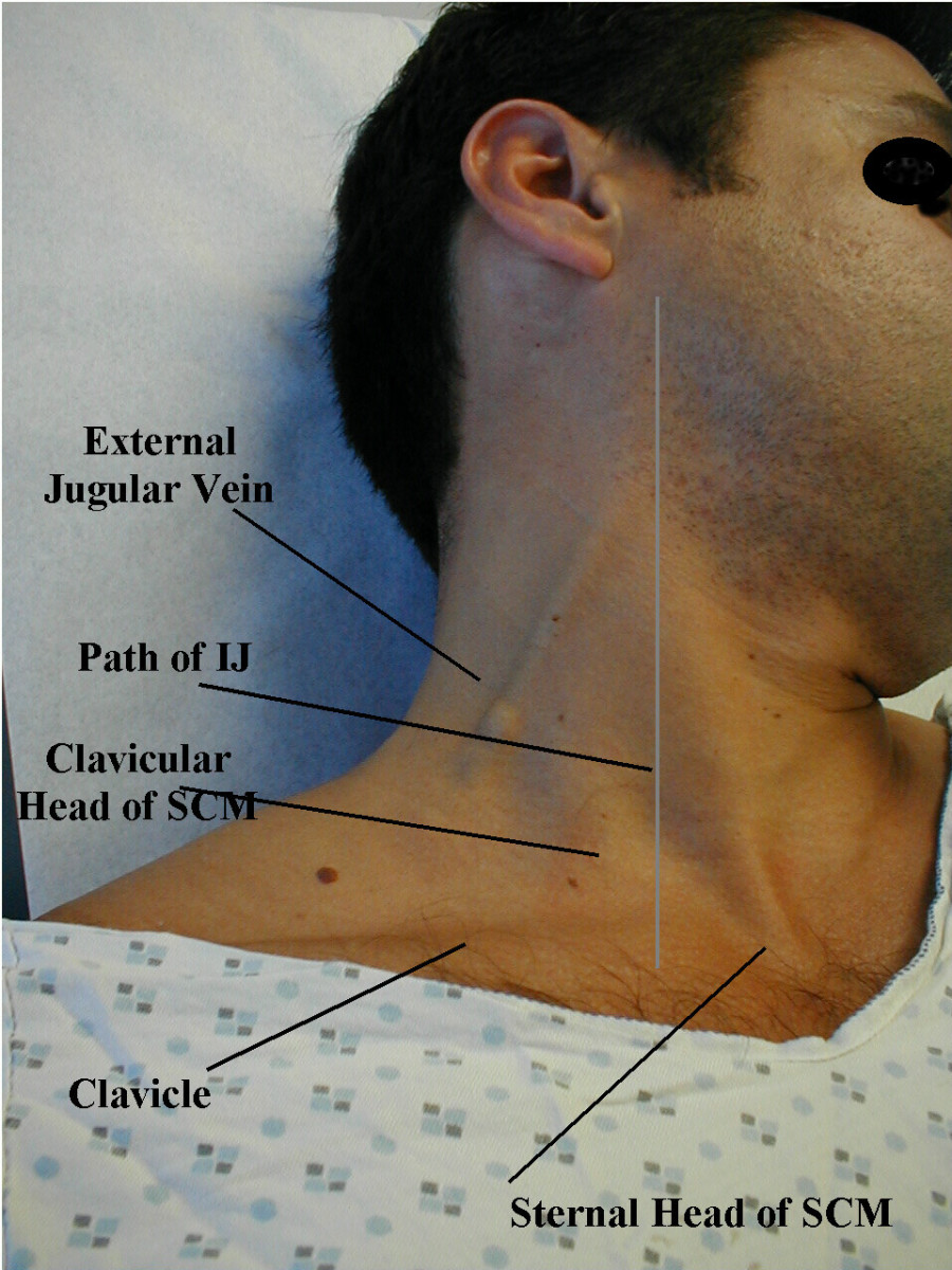 It is ideal to examine the internal jugular vein with the patient resting comfortably at an angle of 450. The jugular vein closely reflects the pressure changes within the right atrium