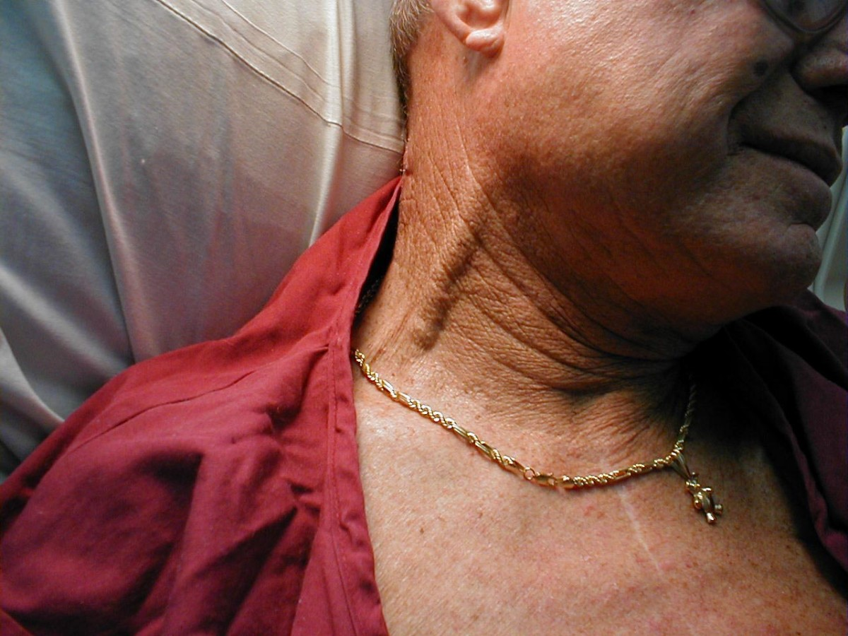 While observing the jugular vein, the abdominal wall is pressed. Rise in intra-abdominal pressure crives blood from the liver to the inferior vena cava, thus increasing the venous return to the heart. This results is rise of the jugular venous pressu