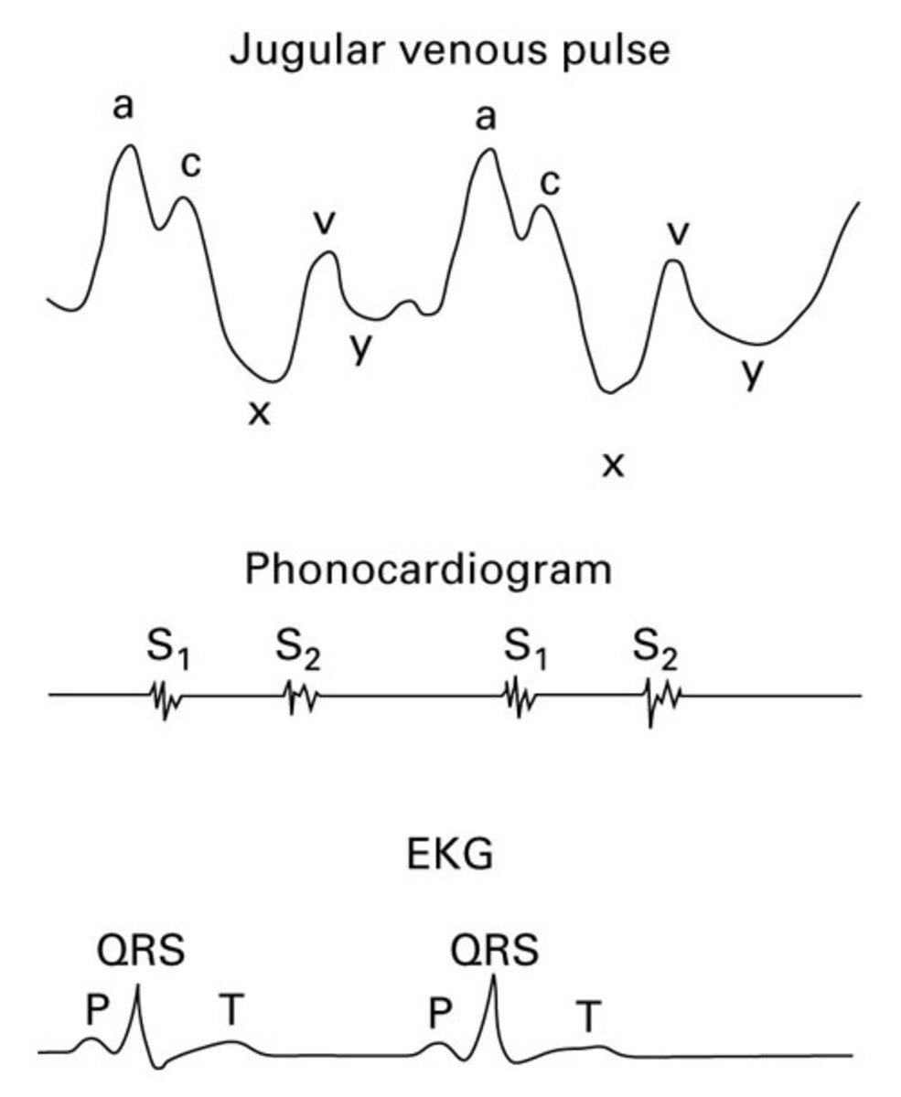 The waves a, c and v and the troughs x and y are also studied. The jugular vein is a low pressure system and therefore, the waves are occluded easily by palpation.