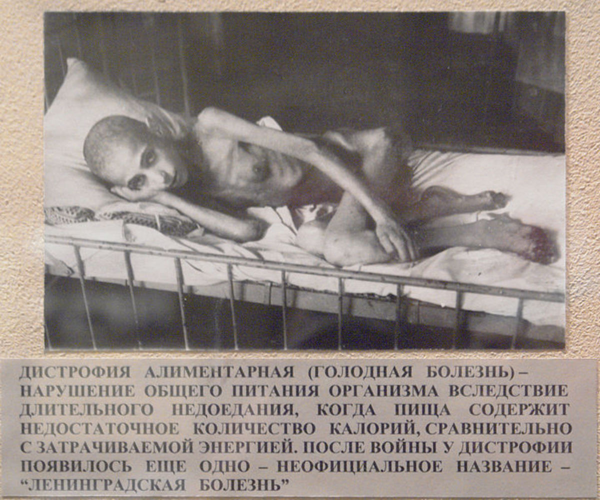 A young victim of starvation in Leningrad, who also suffered from dystrophy.