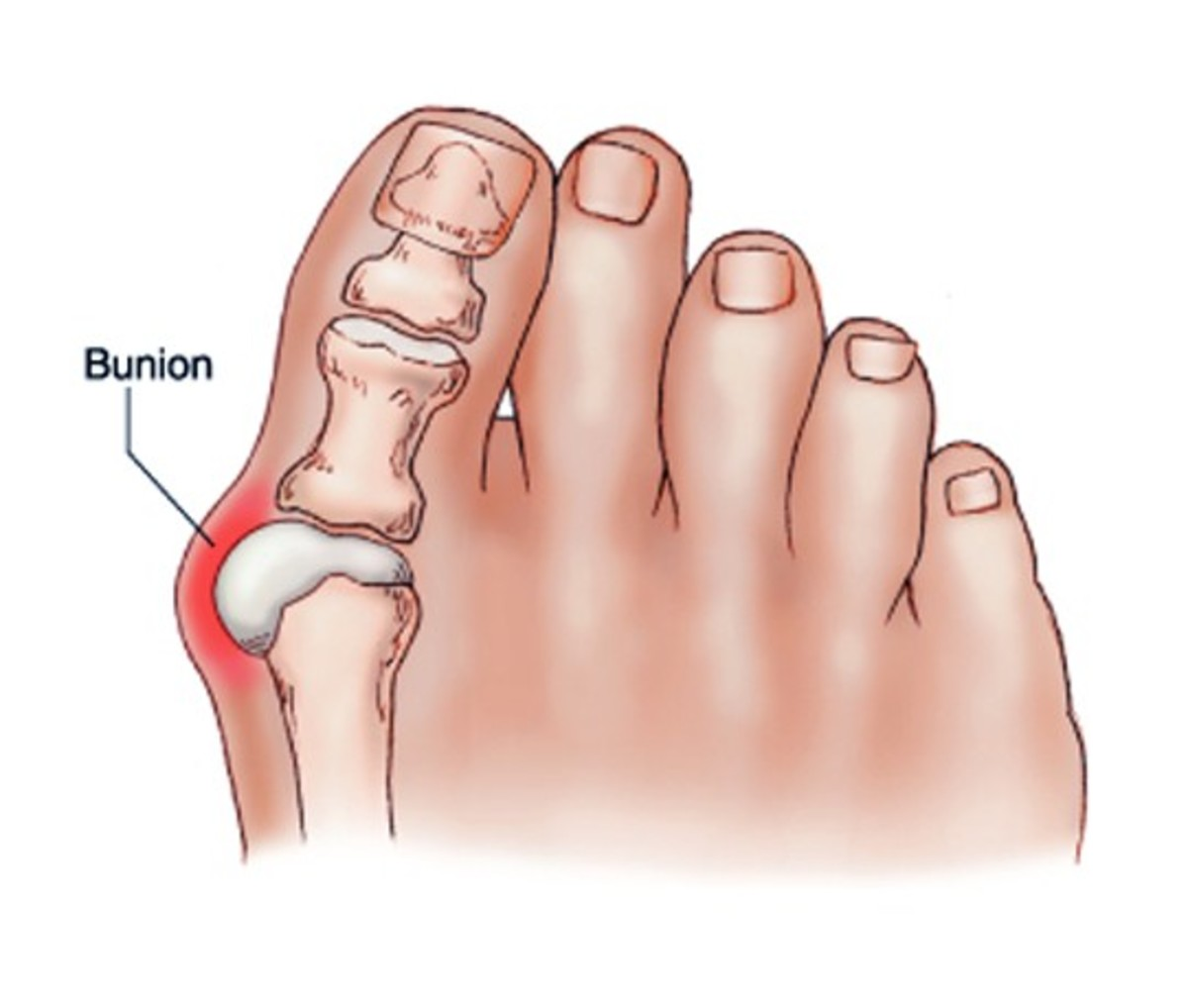 Bunion surgery - Photos, Cost, Complications, Recovery time