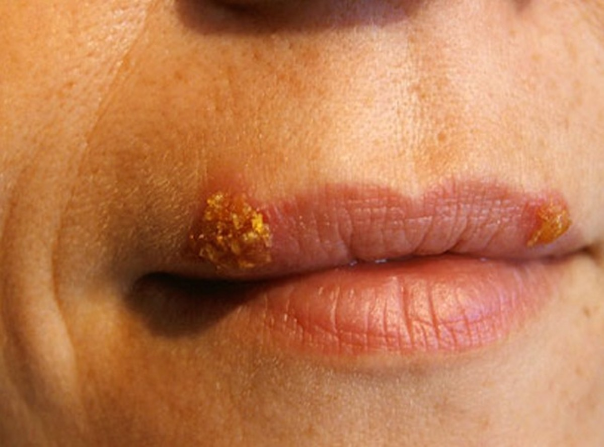 Cold Sores on Lips - Pictures, Causes, Treatment, Home remedies, Prevention