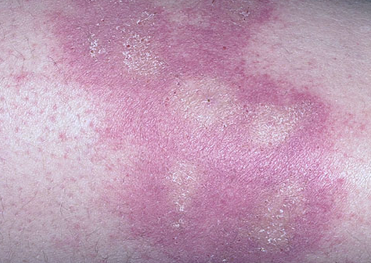 poison-ivy-rash-pictures-symptoms-causes-treatment