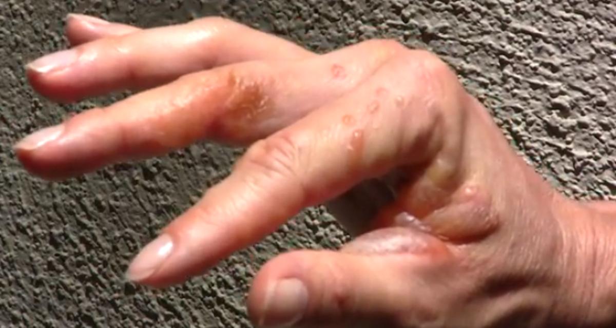 poison-ivy-rash-pictures-symptoms-causes-treatment