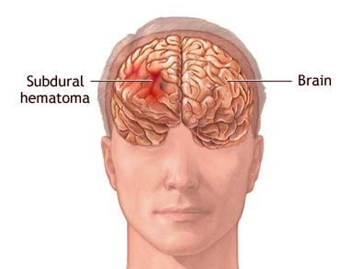 Subdural Hematoma - Symptoms, Causes, Treatment