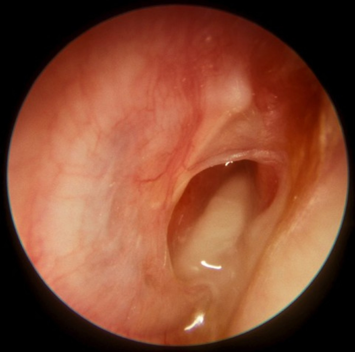 Inner Ear Infection - Symptoms, Causes, Treatment, Pictures