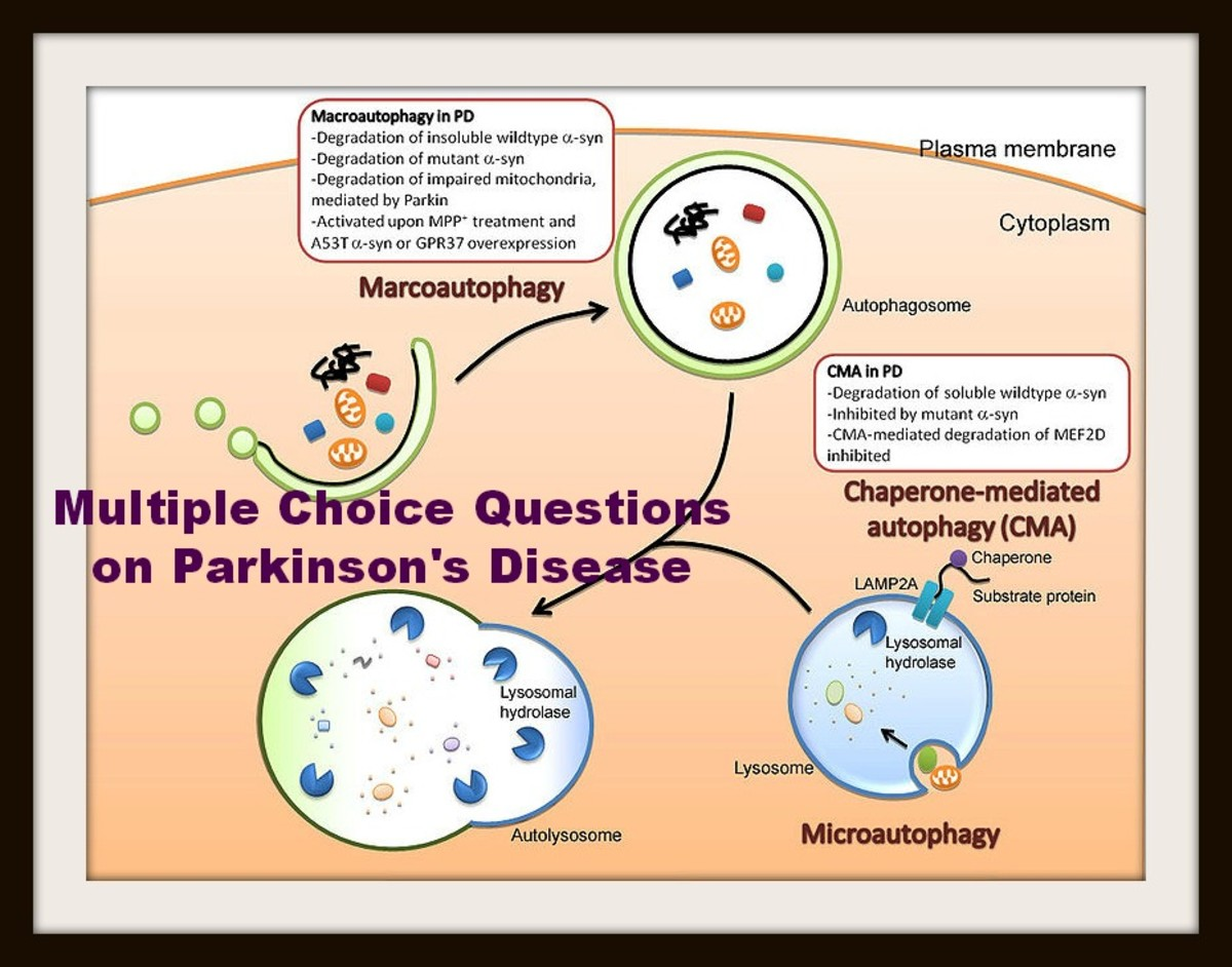 multiple-choice-questions-on-parkinsons-disease
