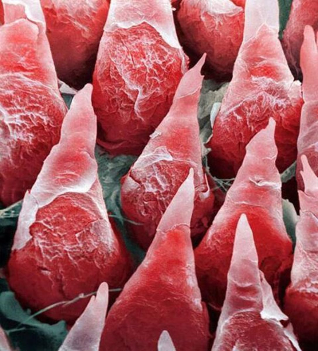The human tongue is covered with tiny soft spikes called Filiform Papillae