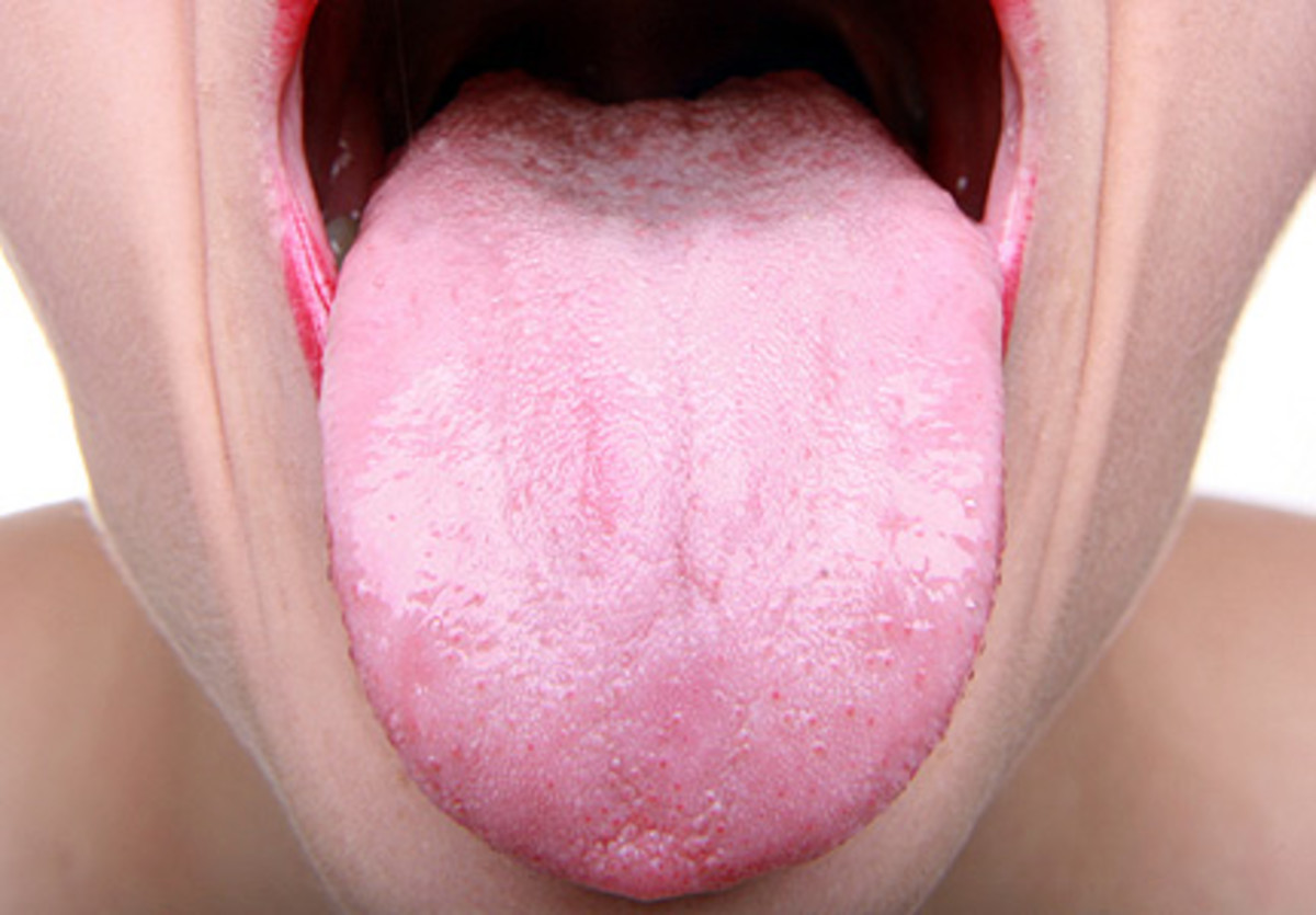Mucosa is the pink tissue that you can see on your tongue. Your tongue is the only muscle that is not attached at both ends.