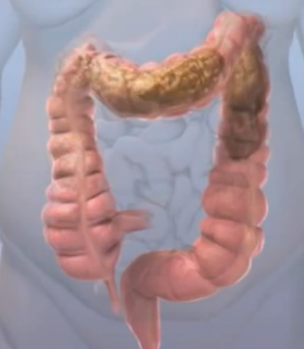 Obstipation Symptoms Causes Treatment