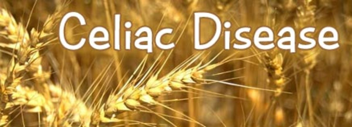 Symptoms of Celiac Disease are not the same for everyone.