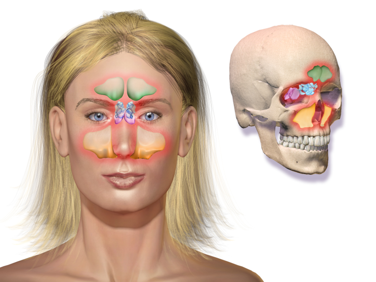 Areas of the face affected by sinus headache.