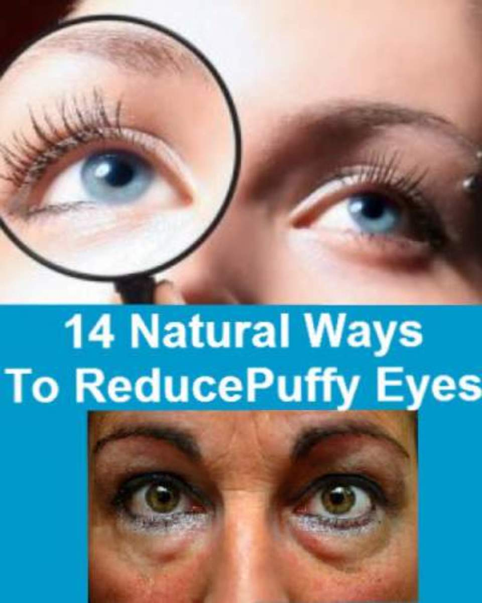 How to reduce under eye puffiness.