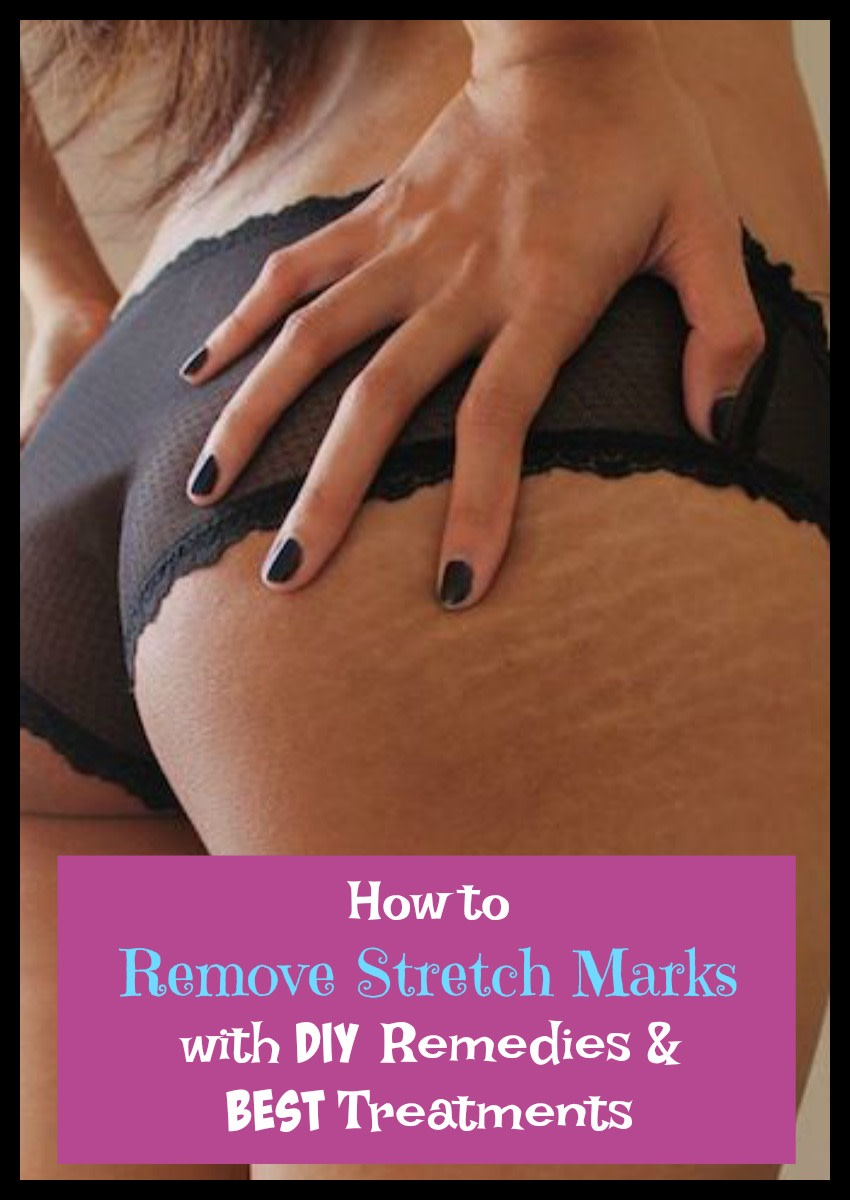 Remove stretch marks with popular DIY remedies and best treatments