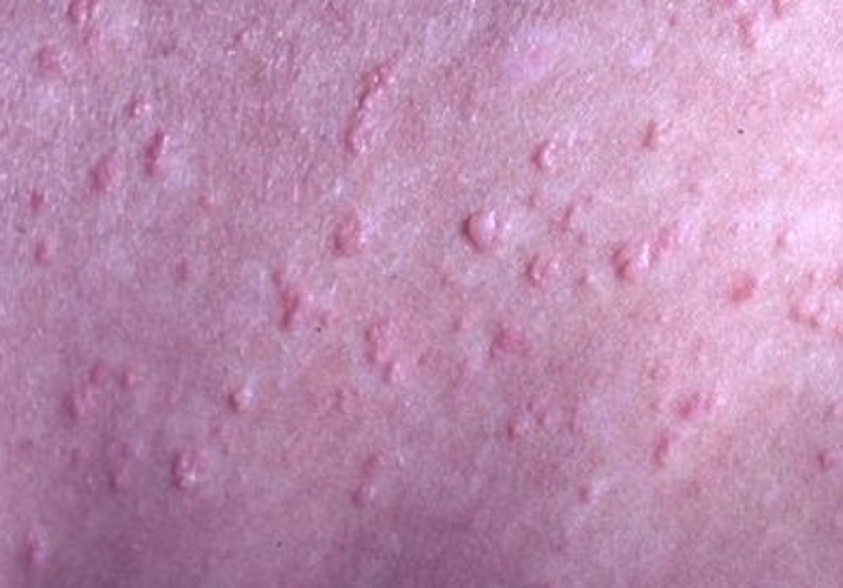 Dermatitis Herpetiformis – Pictures, Symptoms, Causes, Treatment