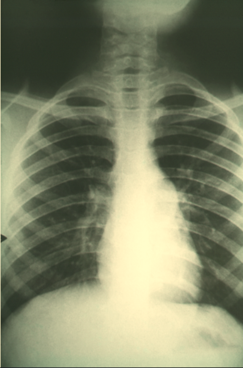 A case of pulmonary fibrosis caused by coccidioidomycosis