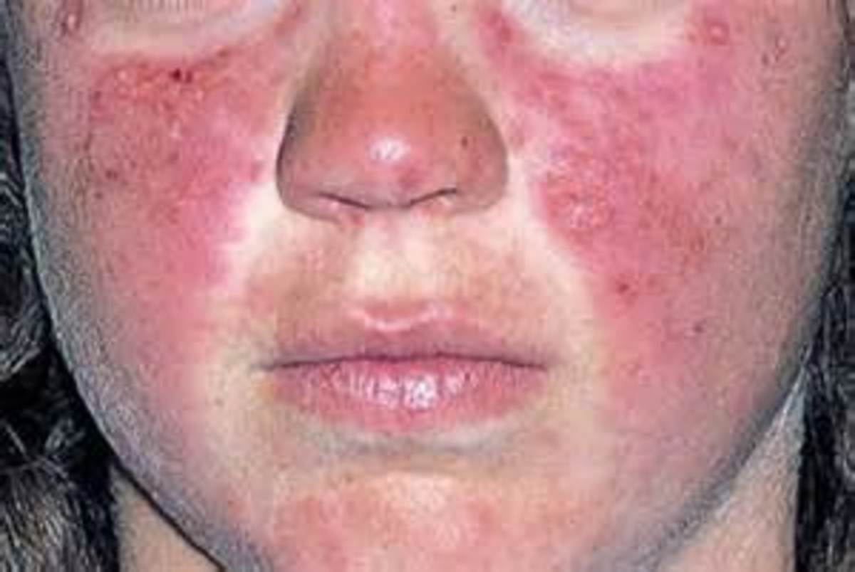 Classiic Butterfly rash