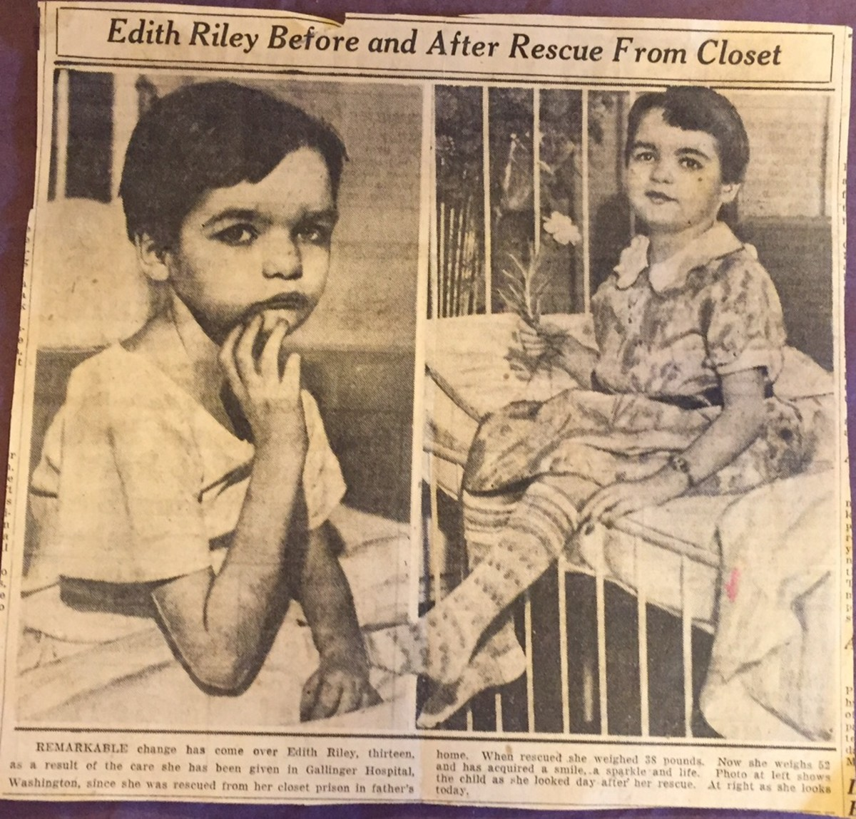 Edith Riley, of Washington State, before and after her rescue from the closet in which her parents imprisoned her.