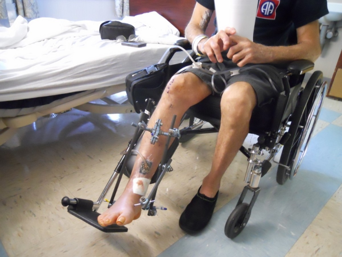 Leg Being Supported By An External Fixator.  Photo shows tube coming from wound to a wound pump.