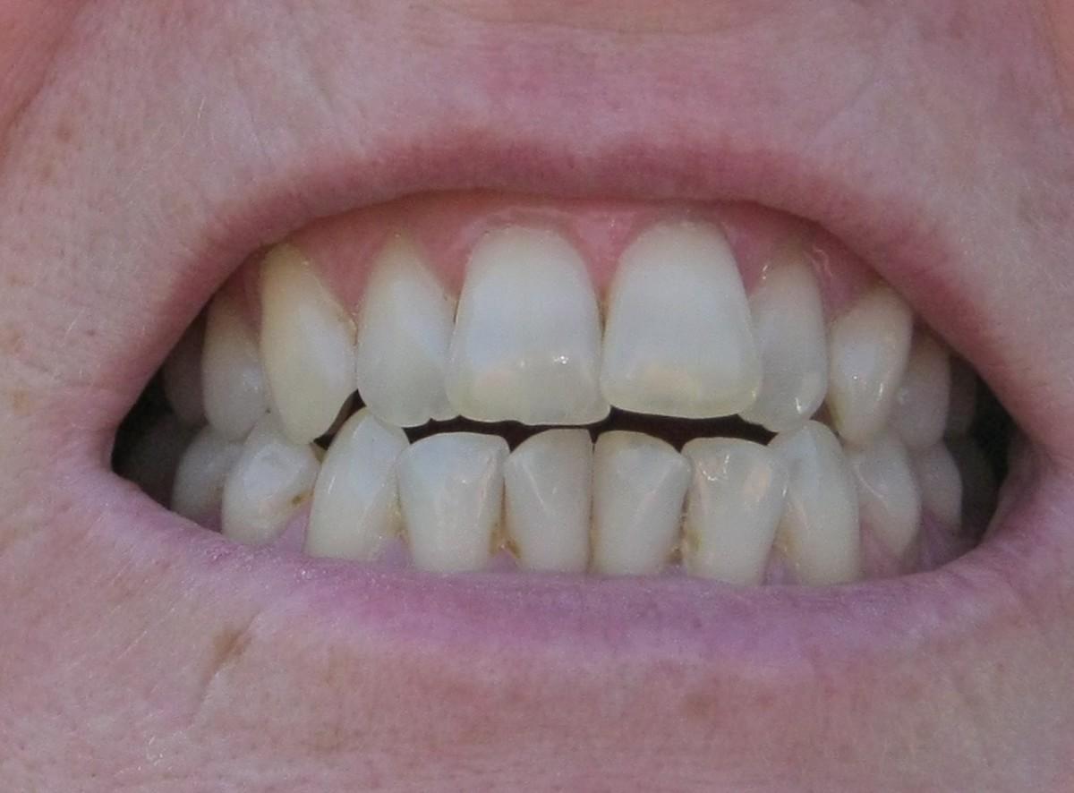 Teeth showing considerable enamel erosion