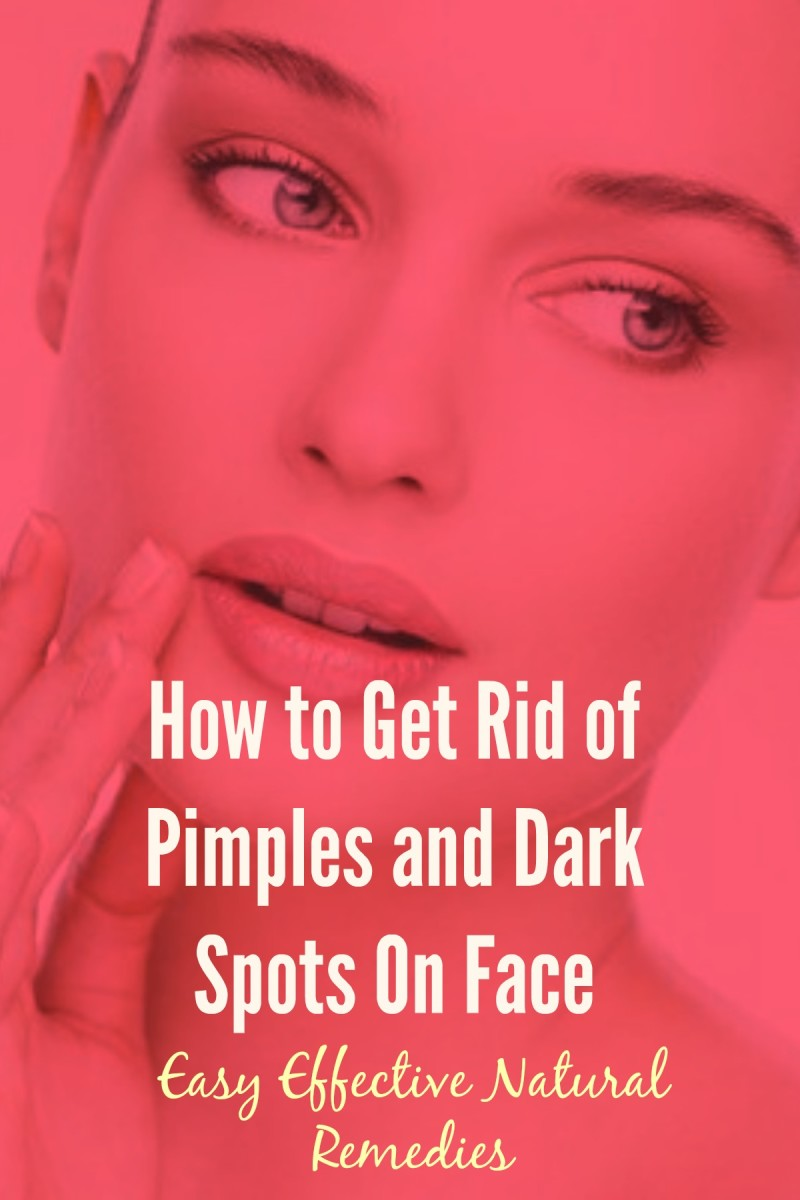 How To Get Rid Of Dark Spots From Face Naturally