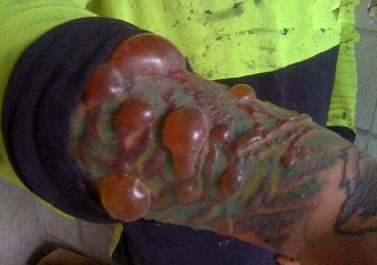 A man with an infected Tattoo as a result of copmlications