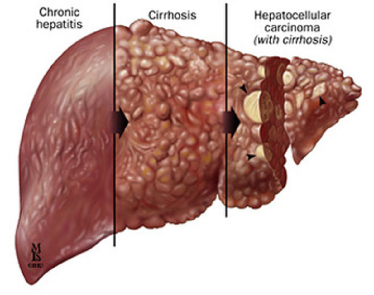 Autoimmune hepatitis and immunosuppressive hepatotoxicity drugs - drug-induced liver toxicity