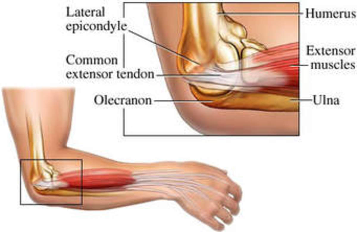 Lateral Epicondylitis - Elbow pain: Diagnosis, Treatment, and Outcomes