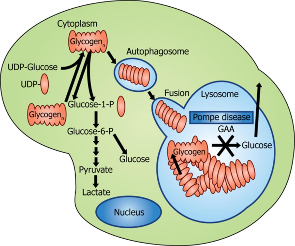 Genetic Disorders - Pompe