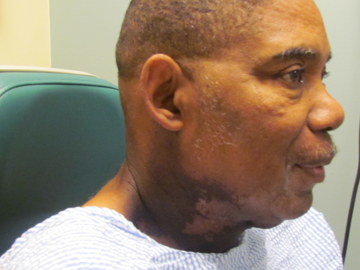 The burns and discoloration Walker, received on his neck area during the last few weeks of his treatment of radiation which are gradually healing with treatment of creams.
