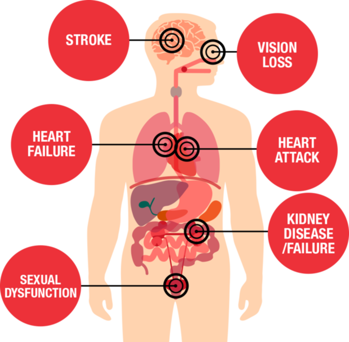 The Silent Killer: Hypertension