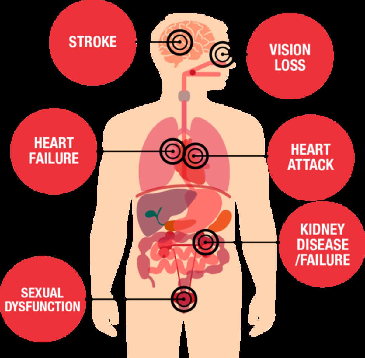 The Silent Killer: Hypertension