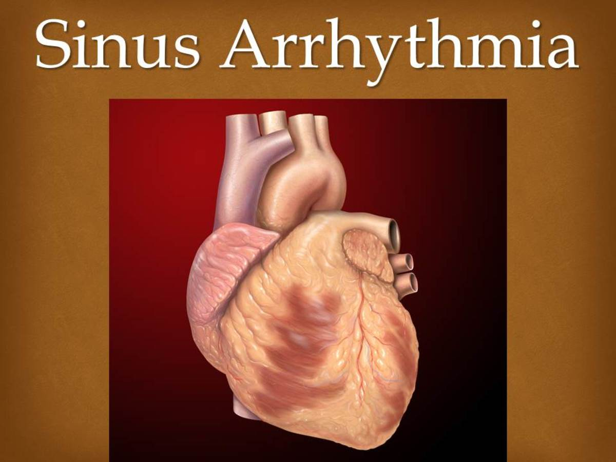 Sinus Arrhythmia - Everything You Need To Know?