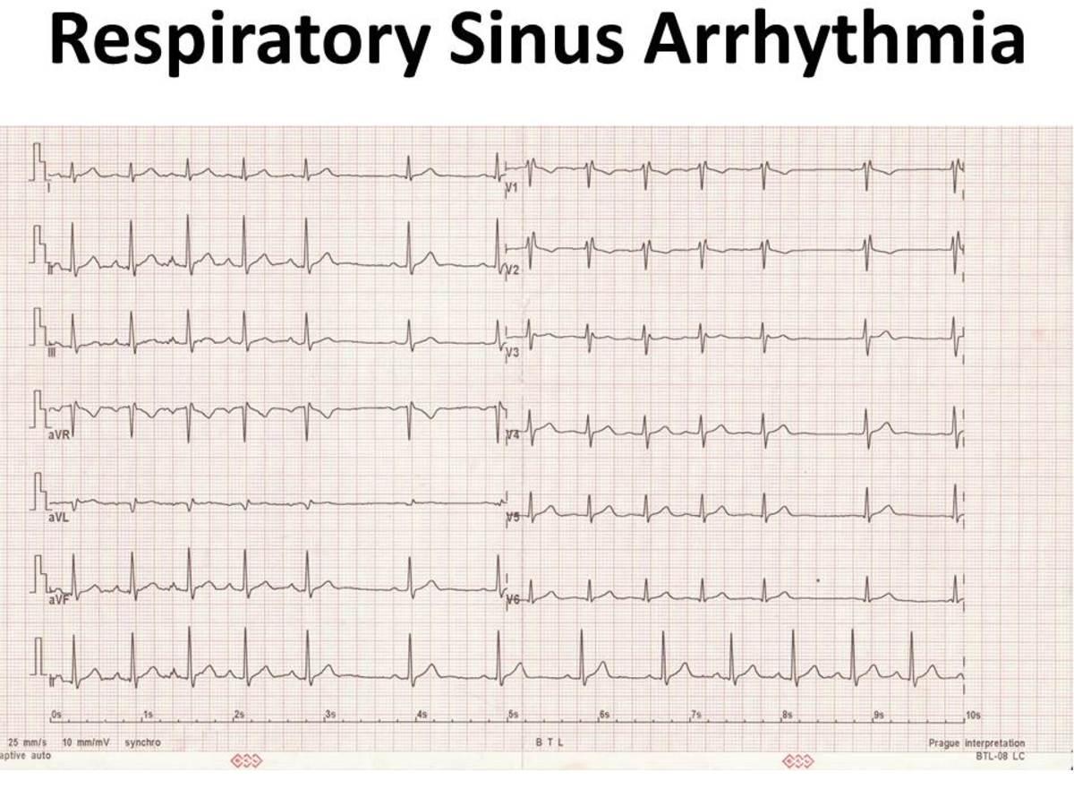 about-sinus-arrhythmia
