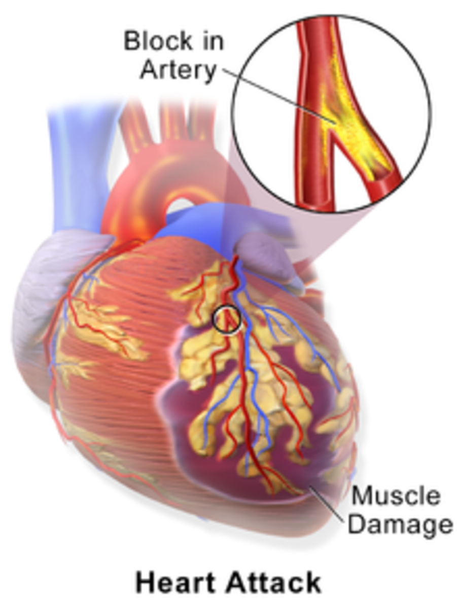 myocardial-in-what-understanding-a-heart-attack