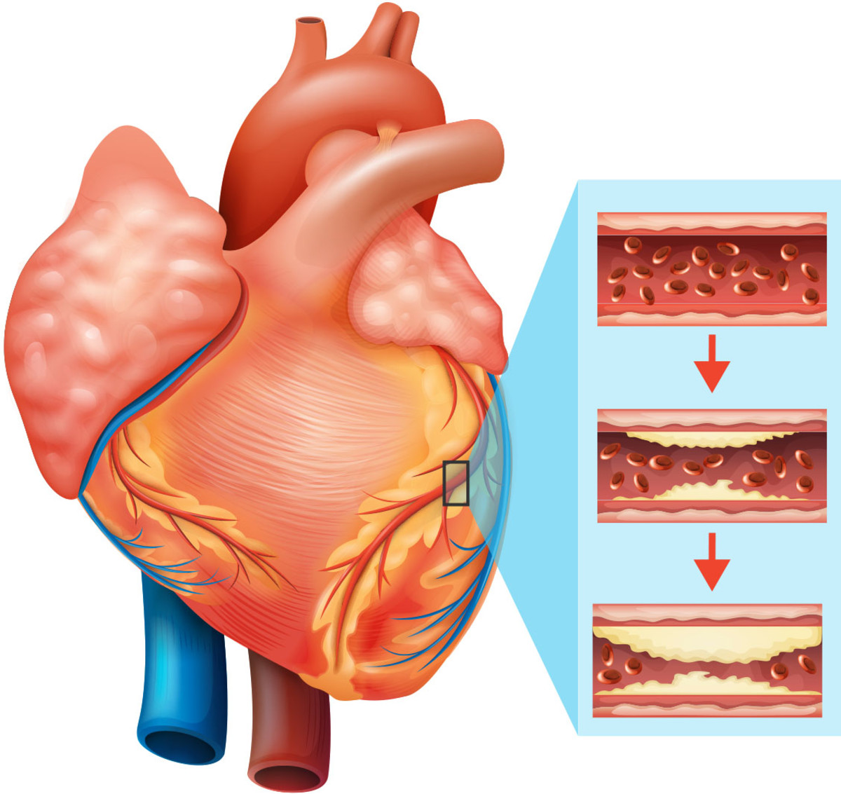 Plaque build-up in the arteries can restrict blood flow. However, this issue is often hard to diagnose.