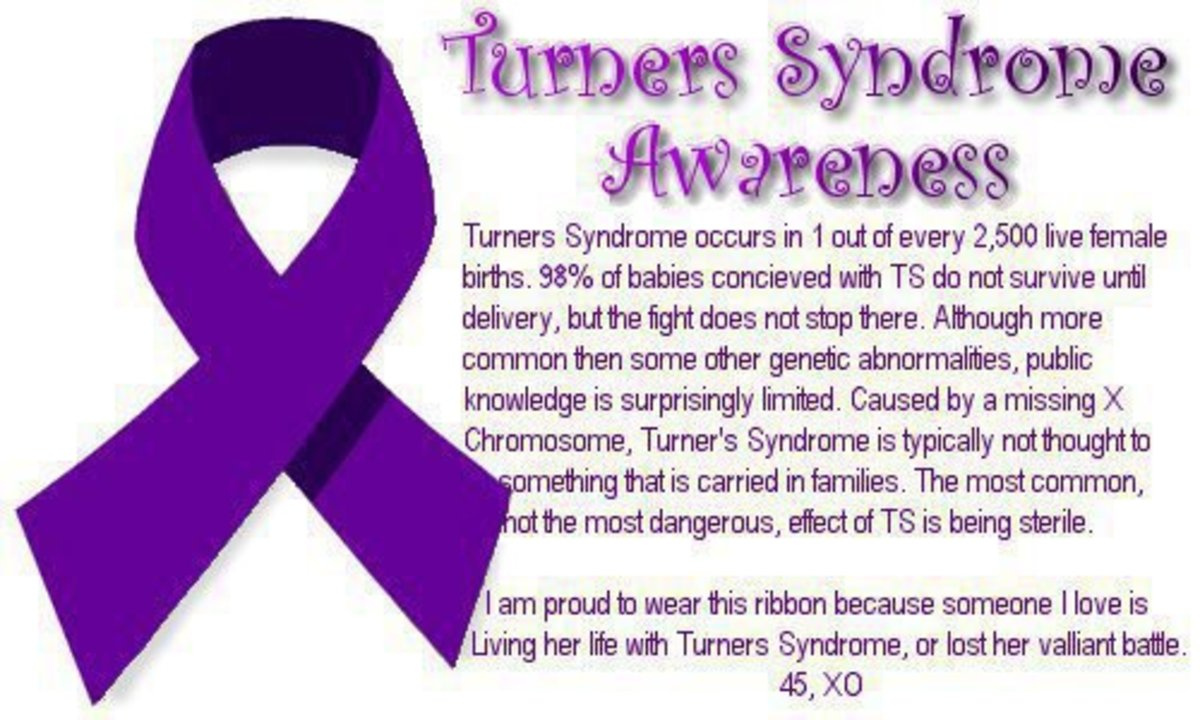 Turner Syndrome: Causes, Symptoms, Treatment, and Coping Mechanisms