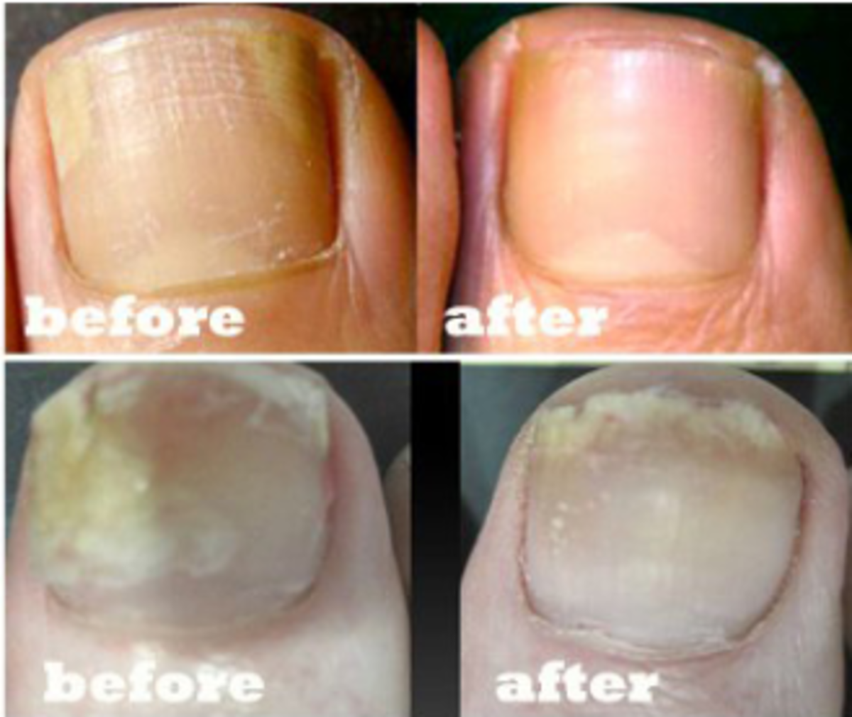 Using Vicks for Toenail Fungus: Before and After