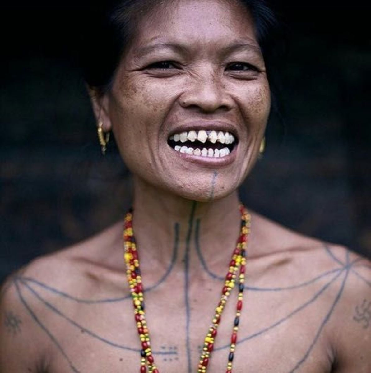 A Mentawai woman with straight teeth and a wide palate.